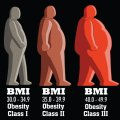 Body mass index (Ouyang et al, 2015)